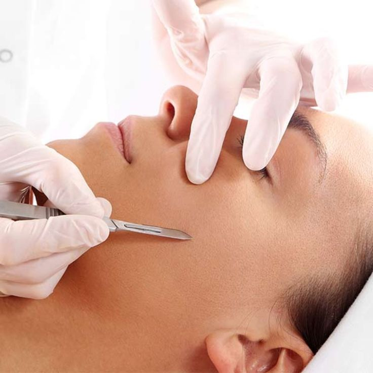 Dermaplaning How to Dermaplane at Home in 2020