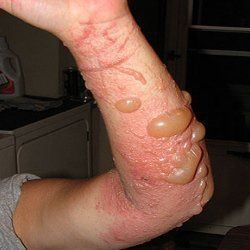 Poison ivy is a skin related problem. Common symptoms of poison ivy include skin rashes, redness, itching, blisters and so on. The problem of poison ivy can last for 3 to 4 weeks. Different home re…