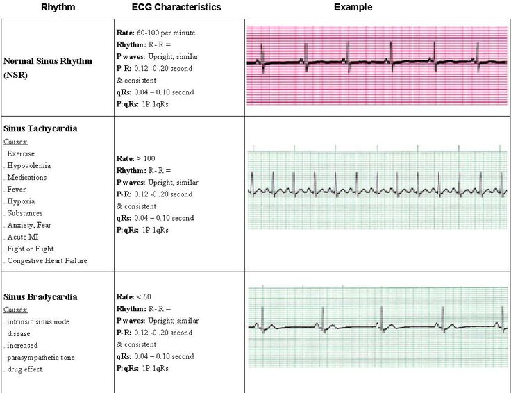 acls+cardiac+recognition+strips