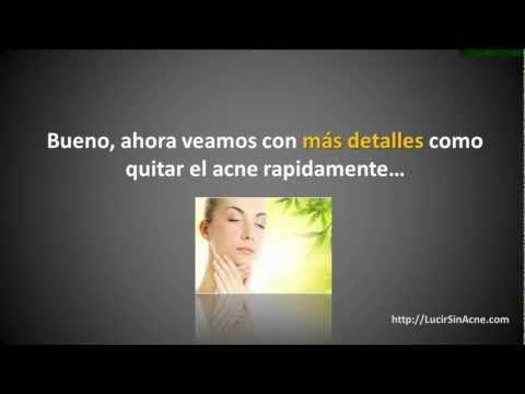 Como Quitar El Acne Rapido De La Cara - Míralo Ahora! - http://solucionparaelacne.org/blog/como-quitar-el-acne-rapido-de-la-cara-miralo-ahora/