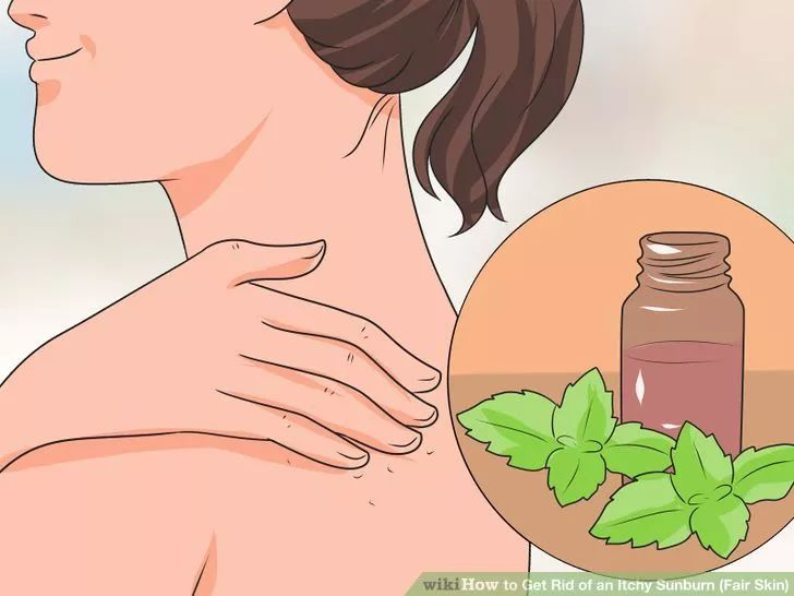 Ways to Get Rid of an Itchy Sunburn