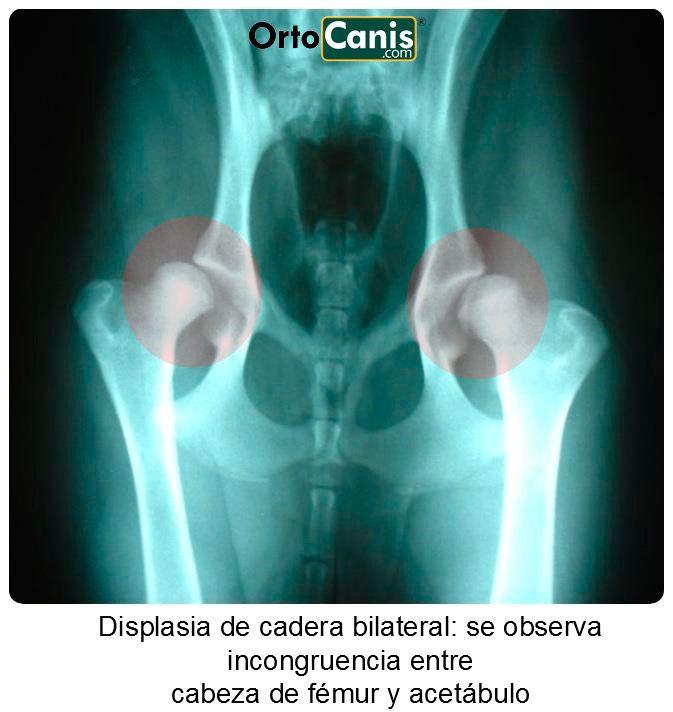 Displasia de cadera