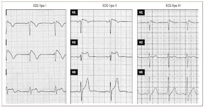 Síndrome de Brugada   Revista Española de Cardiología