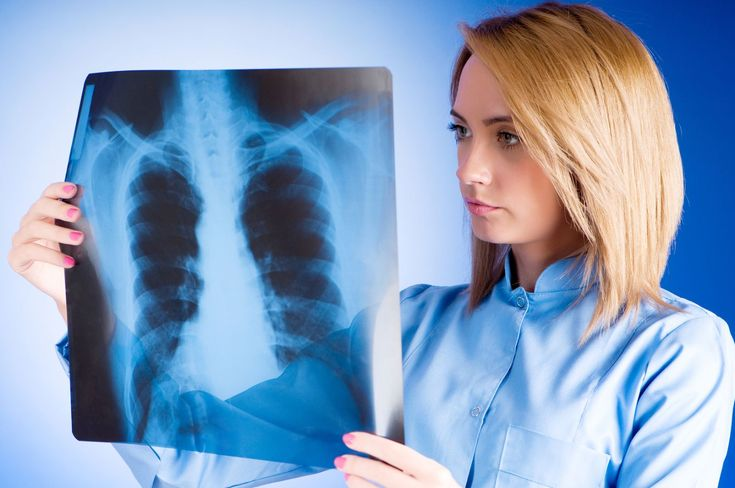 """Convocan a unidos participar """"a todo pulmón"""" en acciones para sensibilizar, prevenir y atender oportunamente el cáncer de pulmón en México - http://plenilunia.com/prevencion/convocan-a-unidos-participar-a-todo-pulmon-en-acciones-para-sensibilizar-prevenir-y-atender-oportunamente-el-cancer-de-pulmon-en-mexico/42668/"""