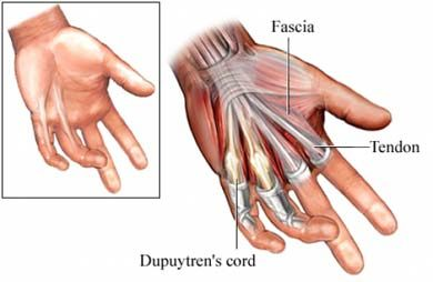 Dupuytren Contracture – Causes, Symptoms, Diagnosis, Treatment and Ongoing care Palmar fibromatosis; due to progressive fibrous proliferation and tightening of the fascia inside the palms, resulting in flexion deformities and loss of function  Read more: http://health.tipsdiscover.com/dupuytren-contracture-causes-symptoms-diagnosis-treatment-and-ongoing-care/#ixzz2ZuGrXhkR