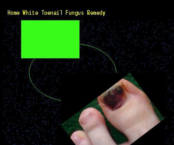 how to make yellow toenails white