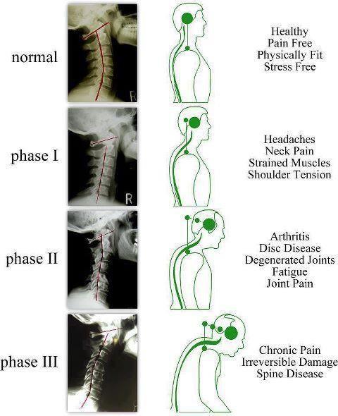 Curvaturas do pescoço.