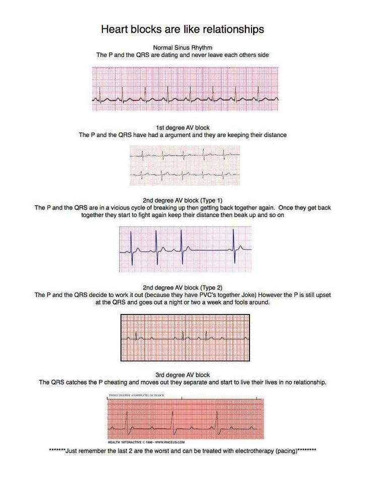 ***Heart blocks- comparing it to human relationships. Neat way to remember…                                                                                                                                                                                 More