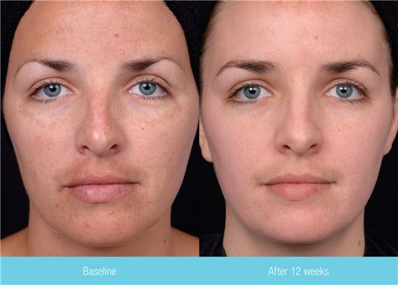 Chemical Peel for Melasma Before and After All About hyperpigmentation treatment http://meladermpigmentreducingcomplex.org/get-rid-of-hyperpigmentation/