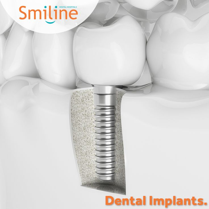 Smiline Dental hospital provides teeth implants in Madhapur, Hi-tech city & Hyderabad. The people who lost teeth due to accident, decay, disease etc.