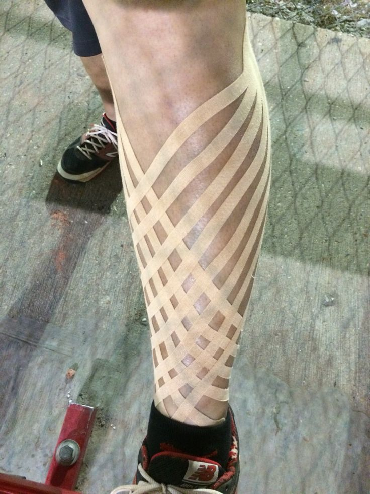 Best 25 Leg Lymphedema Ideas On Pinterest Lymphatic