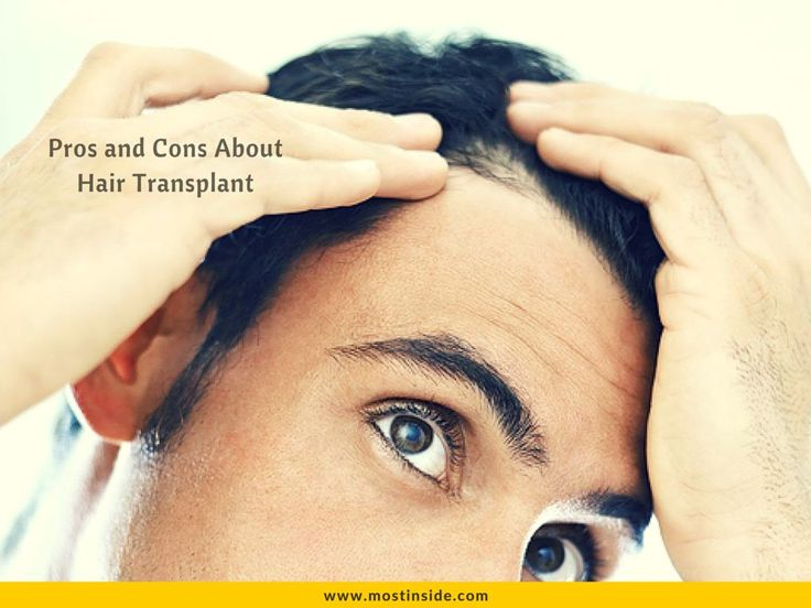Pros and Cons About Hair Transplant