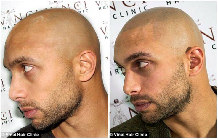 Homens carecas tatuam 'cabelo raspado' no couro cabeludo