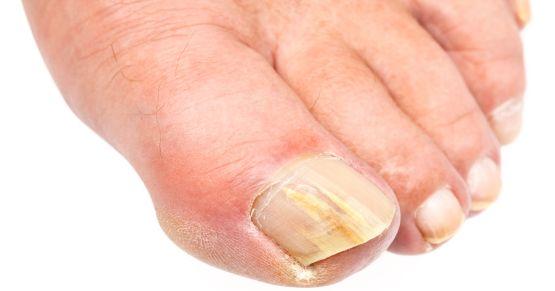 Remèdes naturels contre mycoses des ongles