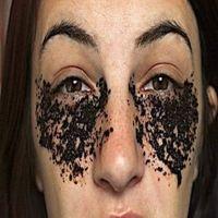 Esqueça O Botox: Remova Sacos Para Os Olhos Com Isso