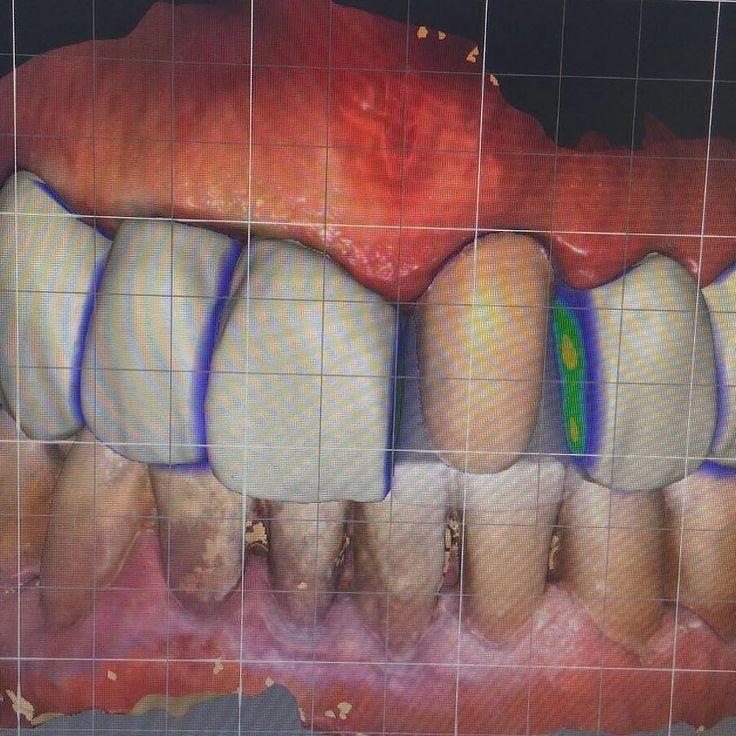Diseño de coronas y carillas empress. #cadcam #carillasdentales #coronasdentales #dsd #digitalsmiledesign #sironadental #dentalwork #laboratoriodental #dentaldesign