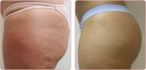 Thighs fat removal with Accent Ultra