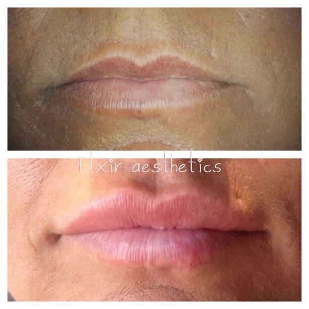 Before and after lip filler / lip enhancement  https://www.facebook.com/pages/Elxir-Aesthetics/657997570912440