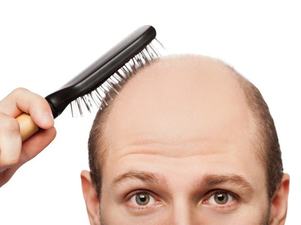 How FUE hair transplant in Singapore can help with receding hairline  #HairTransplant #HairLossTreatment #FUETreatmentSingapore #RecedingHairLine