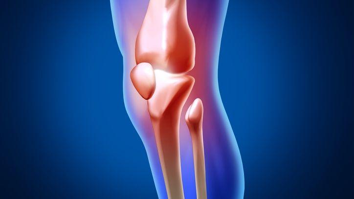 Idag är det Internationella artrosdagen. Artrosär en långvarig ledsjukdom som oftast brister ut i stigande ålder men den förekommer även i yngre åldrar. Tung ochmonotonbelastning på höft- och knäleder under en lång tidsamtIdrottsskador såsom menisk- och korsbandskador i knäna, ökar risken för artrosutveckling.