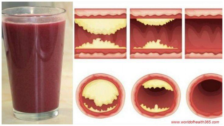 10 Potravin, ktoré prečistia tepny prirodzene a chránia pred infarktom