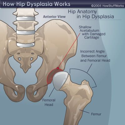 adult hip dysplasia and bowel problems
