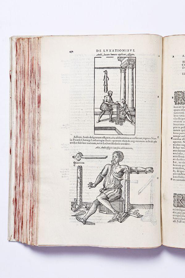 PARE' AMBROISE, Opera … a docto viro plerisque locis recognita et latinitate donata, Jacobi Guillemeau labore & diligentia  PARIS · IACOBUM DUPUIS · 1582  PRIMA EDIZIONE LATINA; terza edizione complessiva (la prima stampata nel 1575, la seconda nel 1579). - Rare Books - Libreria Antiquaria Borromini al Pantheon