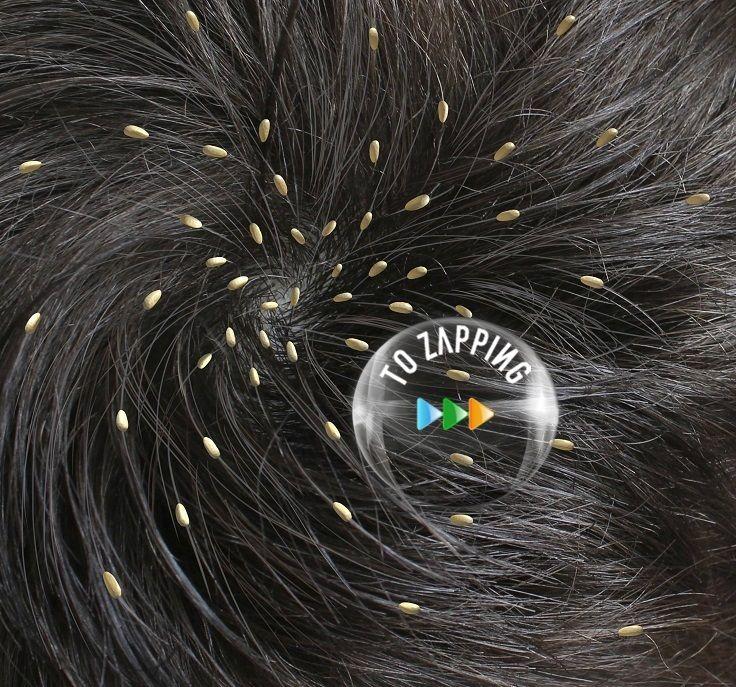 como quitar las liendres del pelo