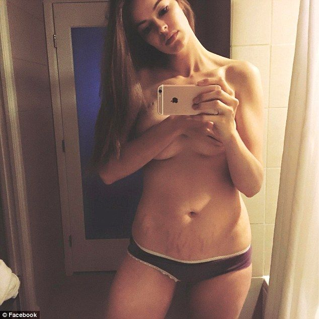 Beautiful words: New mom Robyn Lawley posted this photo of her stretch marks on Instagram ...