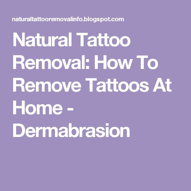 Natural Tattoo Removal How To Remove Tattoos At Home