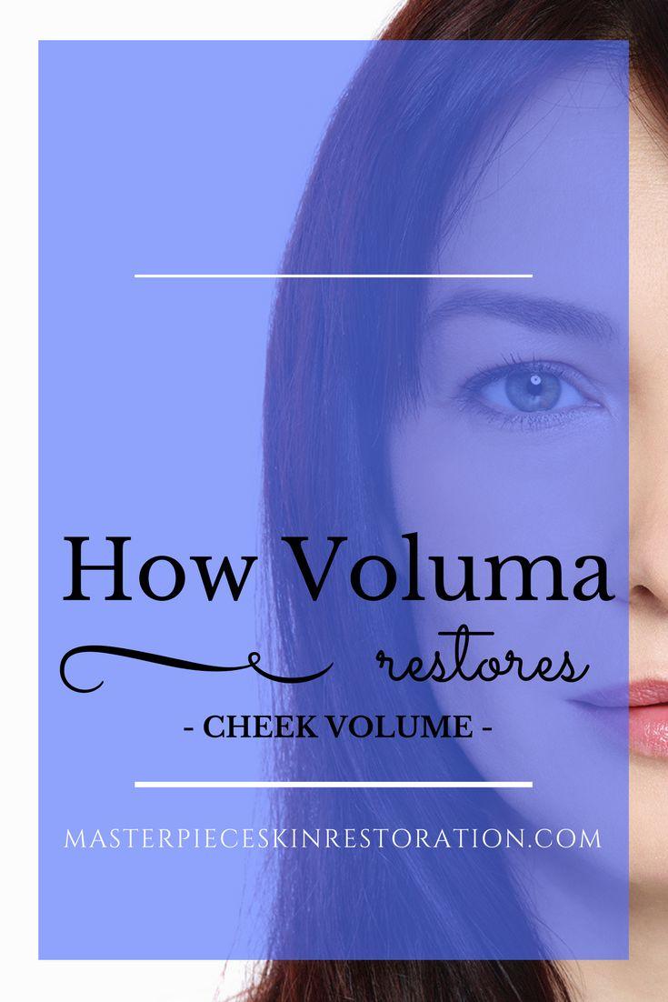 Voluma, Juvederm, cheek volume, facial filler, hyaluronic acid, injections, treatment, skincare
