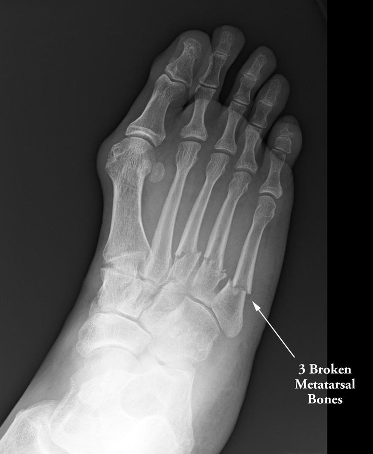 Xray broken metatarsals | X Ray vision | Pinterest | Ask ...