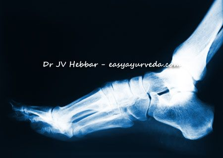 Calcaneal Spur - Ayurvedic Treatment, Tips and Remedies