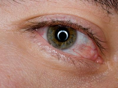 How to Fix the Most Common Eye Problems | Yahoo Health
