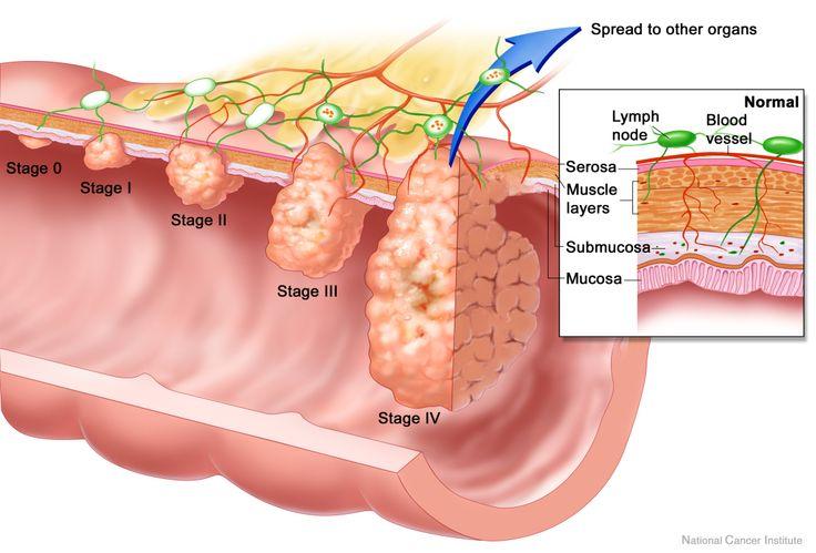 O câncer de intestino em geral se desenvolve a partir de pólipos.