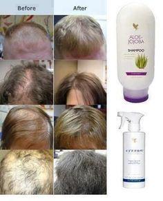 Aloe Vera for dandruff, dry scalp, hair growth