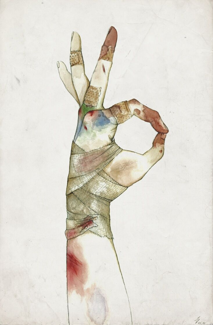 bruised and bandaged hand Guro - maty chan