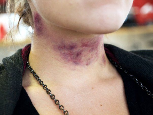 Strangulation bruising by monikwalmsley, via Flickr