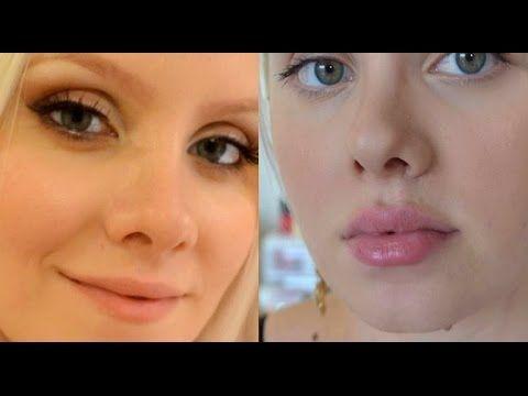 Avoir des lèvres pulpeuses NATURELLEMENT & DEFINITIVEMENT