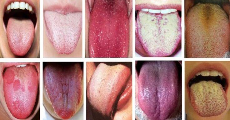 A nyelv a szervezet tükre. Tudj meg többet a tested problémáiról, hogy elkerüld a negatív következményeket