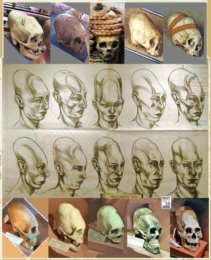 Elongated skulls found in Bolivia, sketched as they would have looked in real life. Alien life