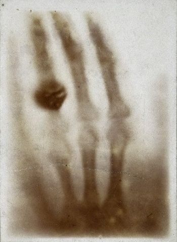 The first medical X-ray.    Hand mit Ringen: Wilhelm Röntgen's x-ray of his wife's hand, taken on December 22, 1895.
