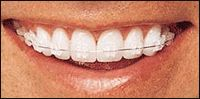 Dr. Sandeep Bhirud's Sweet Smile Dental Clinic offers remarkable treatment for gum disease such as bleeding gum treatment, periodontal gum disease treatment. to know your nearby best dental bleeding gum treatment clinic care.For More Details Visit: http://www.sweetsmiledental.com/dental-treatments/gum-disease-treatment-pimpri-chinchwad-pune/