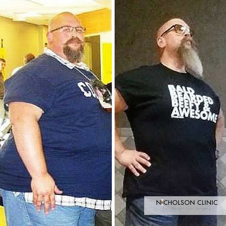Transformationtuesday jim f before 525lbs after for Jackson galaxy band