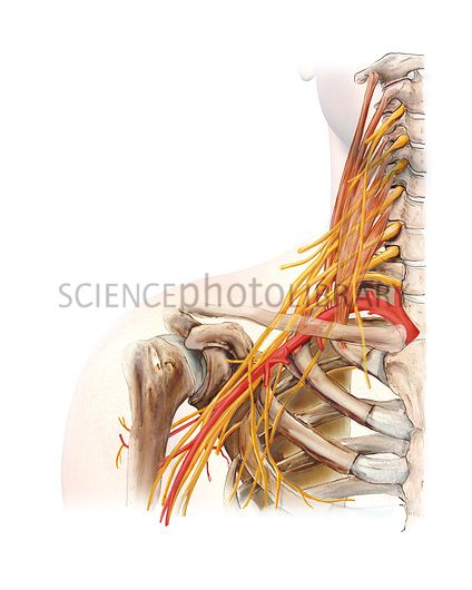 Right shoulder and nerve plexus. Artwork of the nerves (yellow), arteries (red), and bones of the right shoulder, seen from the front. This is the brachial plexus, with the major artery (red) being the subclavian artery that runs below the clavicle (collar bone).