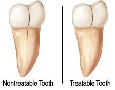 For dental professionals and patients: How do you know what you should save a tooth versus replace it with a dental implant.  Read more here to find out the best treatment plan for you. www.periodontalhealth.com
