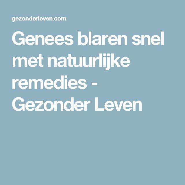 Genees blaren snel met natuurlijke remedies - Gezonder Leven
