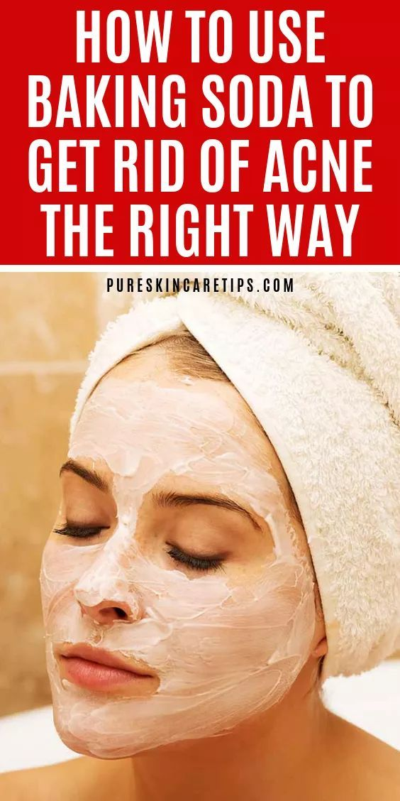 Learn how to use baking soda for acne at home to help you get rid of