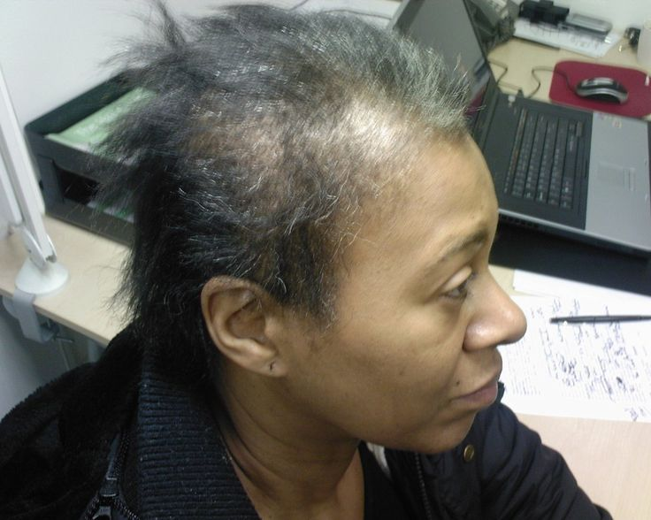 Natural Organic Hair Treatment For Alopecia Patients
