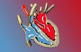 L'angine de poitrine